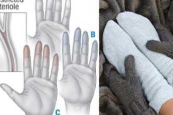 Предупреждающие признаки ваших холодных рук и ног