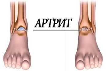 Артрит: 5 продуктов устранят воспаление суставов и избавят от боли!